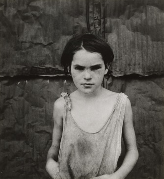 Dorothea Lange, Damaged Child, Shacktown, Elm Grove, Oklahoma, 1936